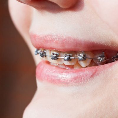 5 Myths About Braces