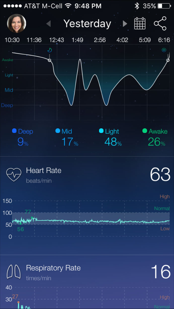 Sleep-Analysis-RestOn-Review-4