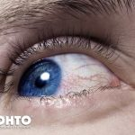 No More Zombie Eyes and Eye Health Tips